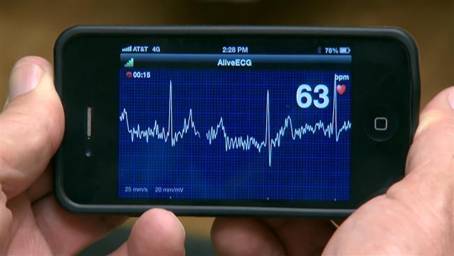 نمایش ضربان قلب بیمار در نرم افزار مدیریت مطب انلاین