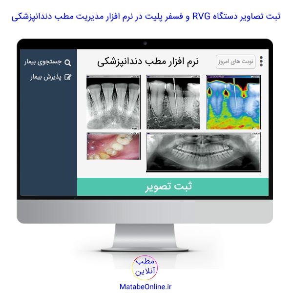 ثبت تصاویر دستگاه RVG و فسفر پلیت در نرم افزار مدیریت مطب دندانپزشکی