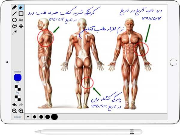 ویرایش و درج یادداشت روی تصاویر ذخیره شده با استفاده از قلم نوری و قلم تبلت در نرم افزار مطب آنلاین